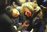 Ester Quintana tras recibir un pelotazo en la cara se quedó tuerta. Barcelona,14 nov. 2012. Fuente: kaosenlared.net.
