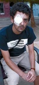 Nicola Tanno perdió un ojo como consecuencia del impacto de una pelota de goma. Barcelona, 3 agosto 2010. Elperiodico.es.