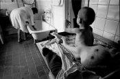 Dramáticos efectos de la radiación sobre los seres humanos. Chernóbil, 1992. Taringa.net.
