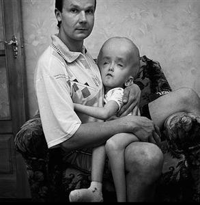 Niño de Chernóbil. Fuente: cartasdealoysius.blogspot.com.