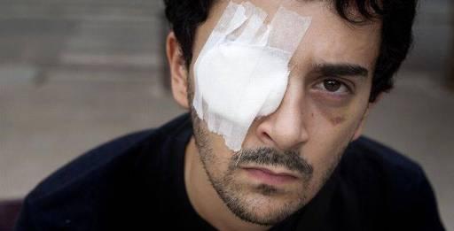 NIcola Tanno, amputado de un ojo, en julio de 2010. Diariodeleon.es. Foto: Ferran Nadeu.